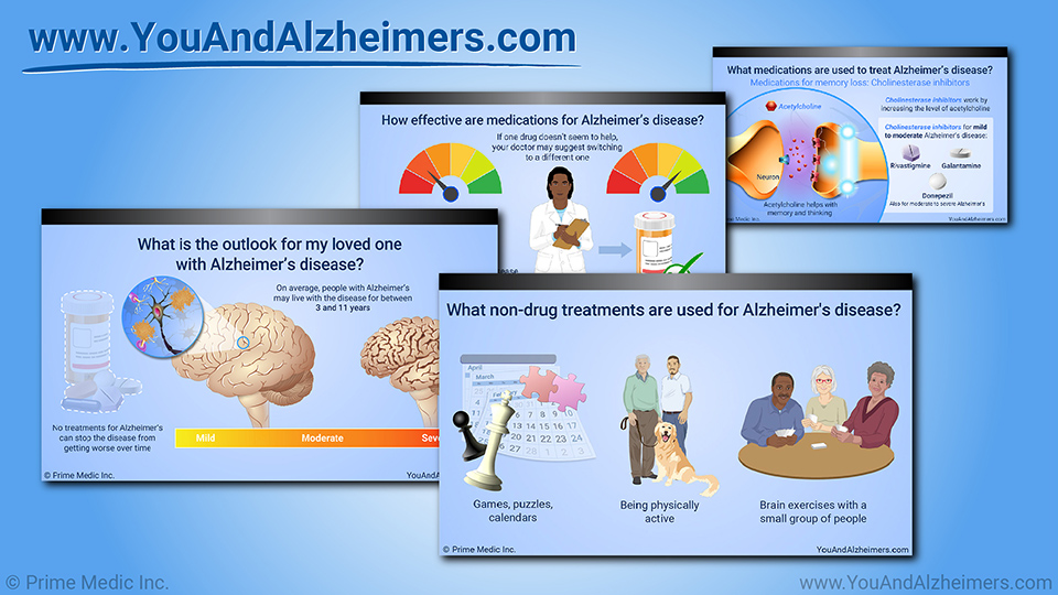 Slide Show - Managing and Treating Alzheimer's Disease